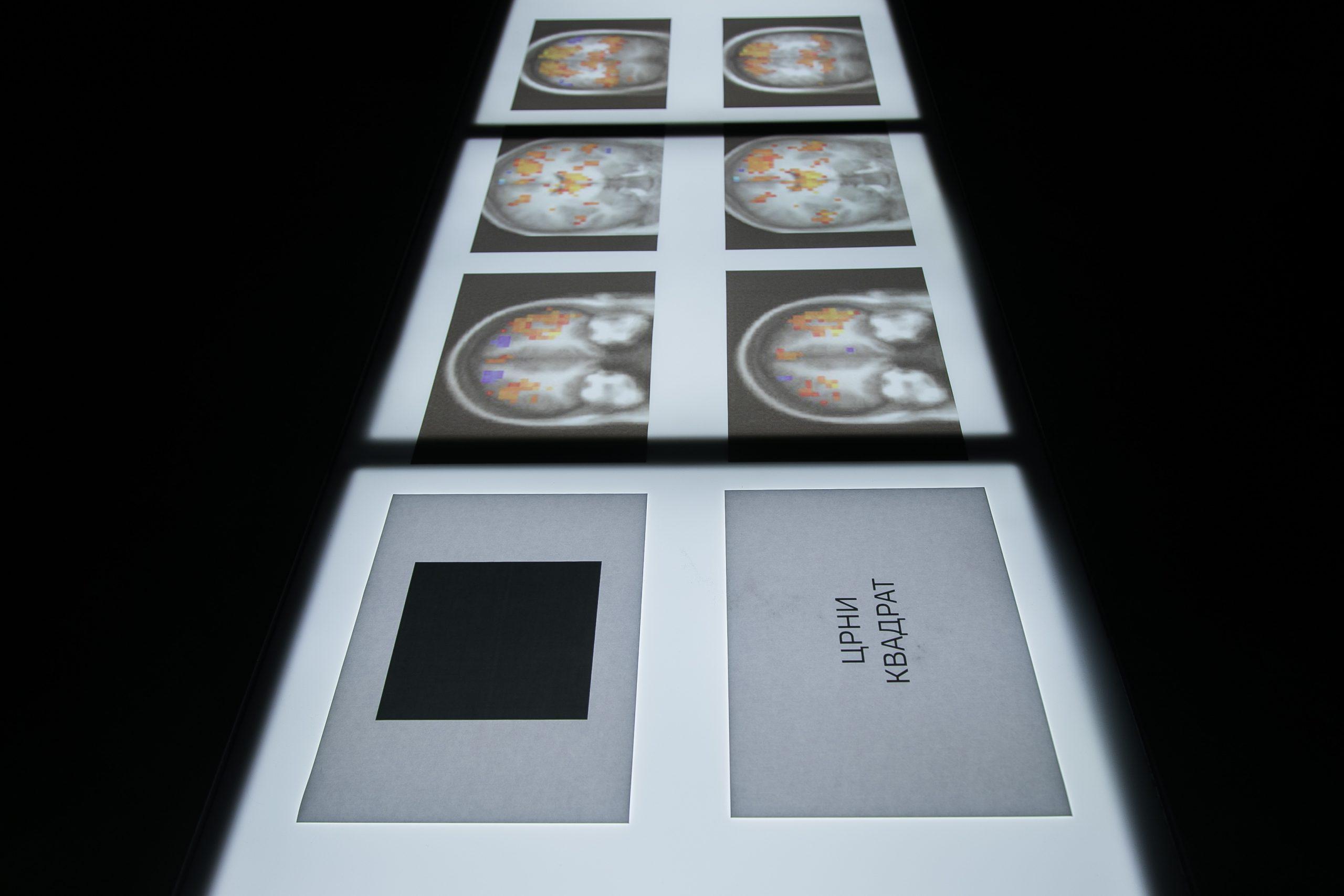 Brain Pictures - Zarko Aleksic